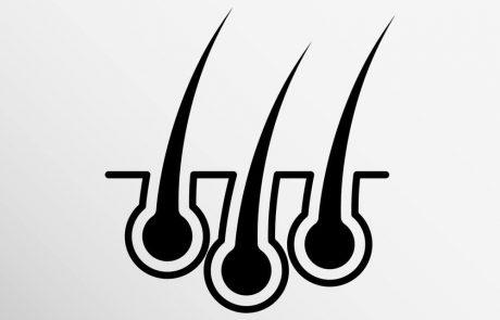 סוגי השתלות שיער: איזו שיטה טובה יותר: FUE או DHI?