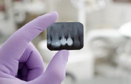 איך בוחרים רופאי שיניים לילדים ולמשפחה?