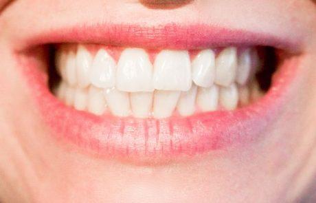 מיתוסים נפוצים אודות הלבנת שיניים